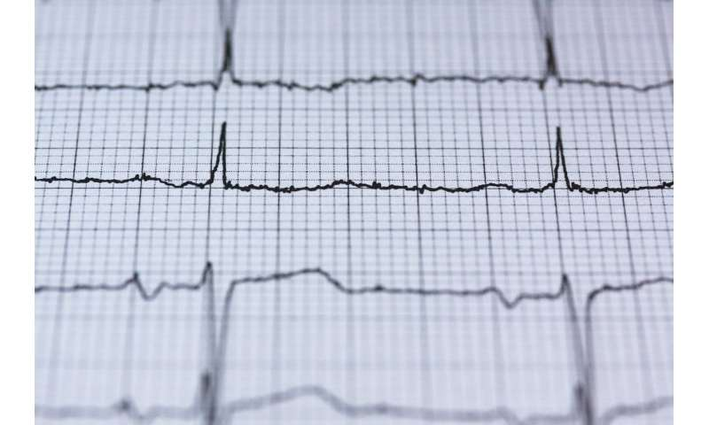 ecg - Scientists propose neural network for multi-class arrhythmia detection
