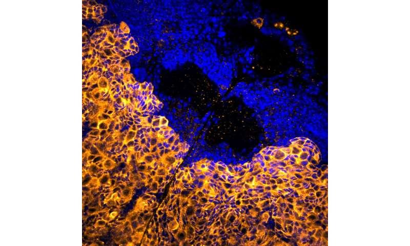 Enzyme blocker stops growth of deadly brain tumor