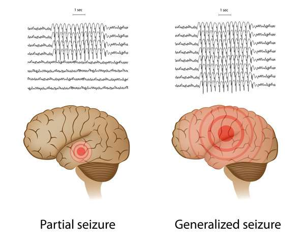 Epileptic seizures and depression may share a common genetic cause, study suggests