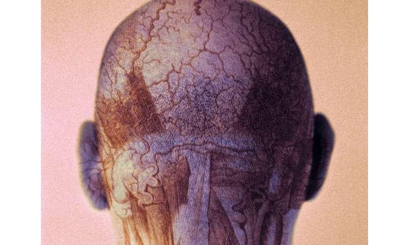FDA warns of rare stroke risk with MS drug
