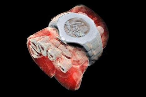 First human scanned with next-generation 3-D colour medical scanner