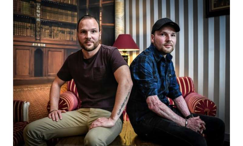 Franck Dufourmantelle (R), 34, received skin grafts from his twin brother Eric after suffering burns to 95 percent of his body