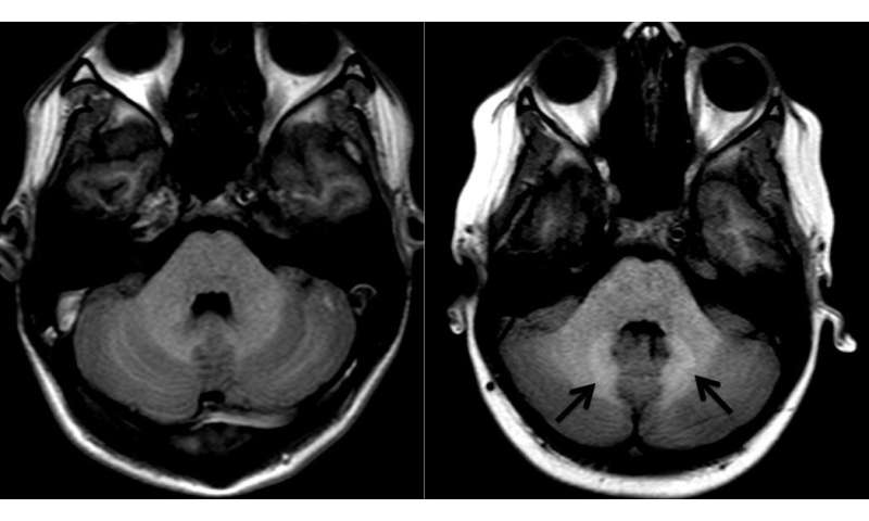 Gadolinium deposition in the brain not dose dependent