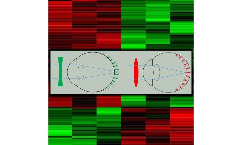 Gene changes driving myopia reveal new focus for drug development