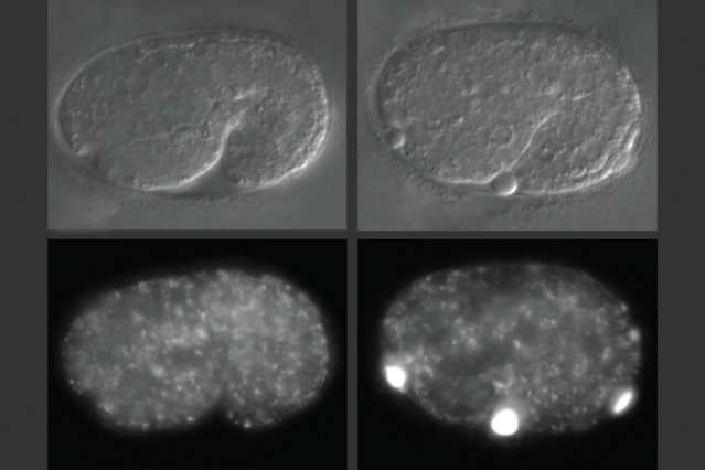 Gene loss can lead to accumulation of waste products in cells