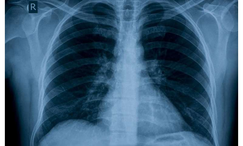 Genetic study could lead to new treatments for sufferers of pulmonary arterial hypertension