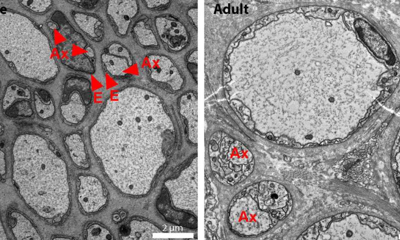 Glia and axons: A match made in evolution