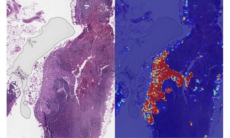 Google researchers see progress in tool to detect breast cancer spread
