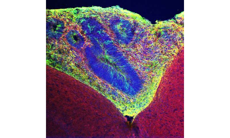 Grafted brain organoids provide insight into neurological disorders