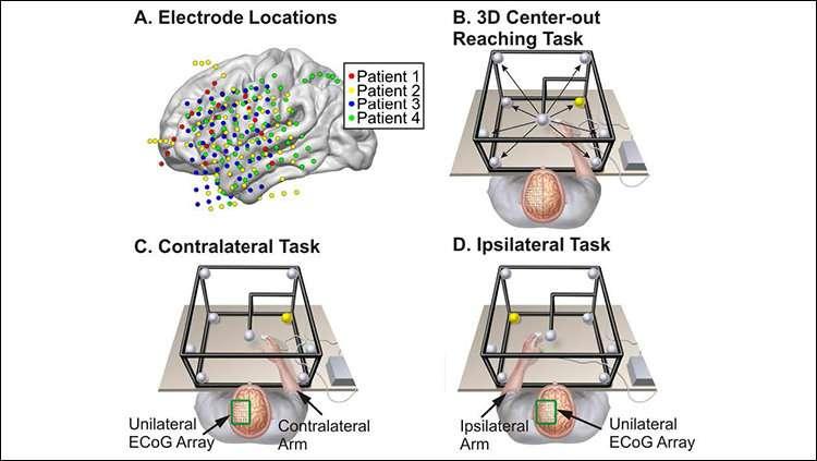 Half the brain encodes both arm movements