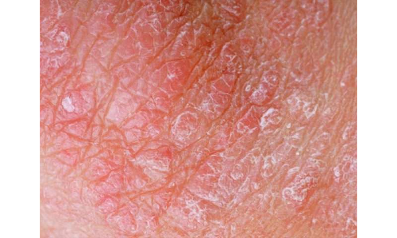 Halobetasol propionate lotion shows efficacy for tx of psoriasis