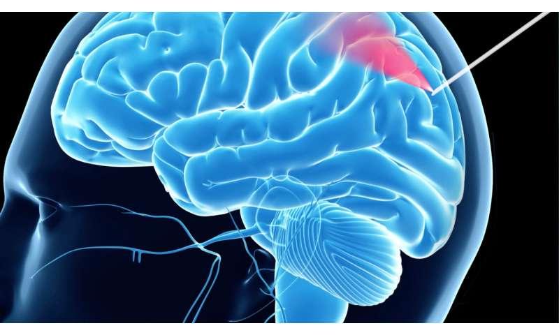 Helping make brain surgery safer
