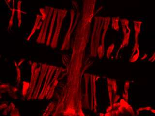 High vinculin levels help keep aging fruit fly hearts young