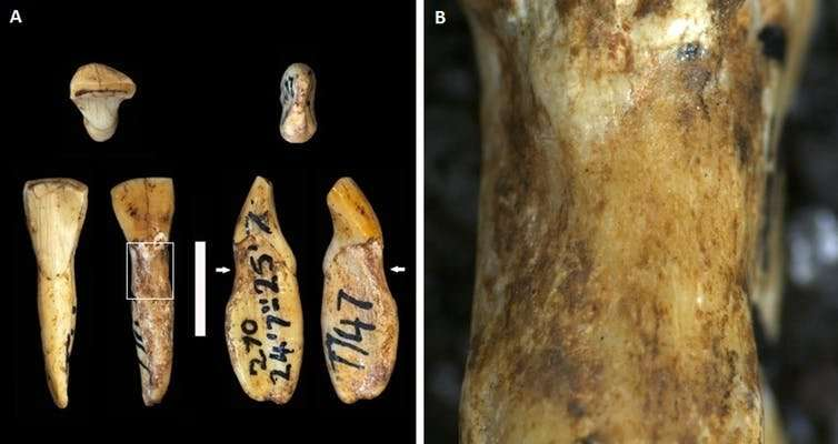 Human ancestors had the same dental problems as us – even without fizzy drinks and sweets
