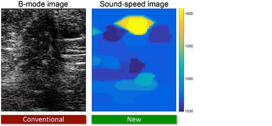 Innovations in ultrasound imaging improve breast cancer detection