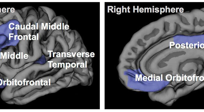 Insomnia therapy may slow or reverse cortical gray matter atrophy in fibromyalgia