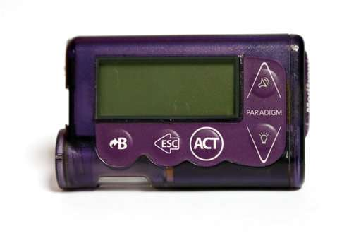 Insulin Pumps have high number of injuries