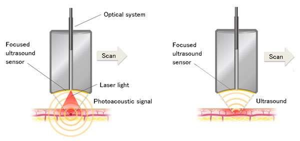 In vivo skin imaging technology developed