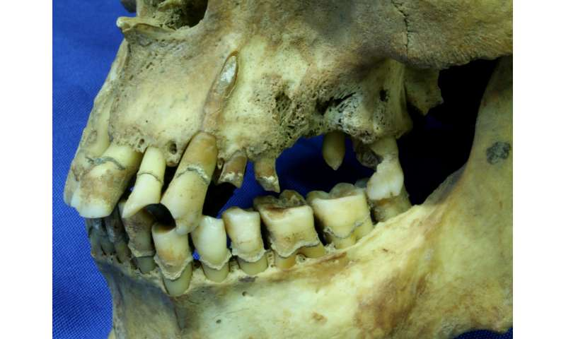Irish Famine victims' heavy smoking led to dental decay, new research reveals