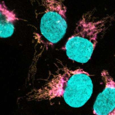 Key player in cell metabolism identified