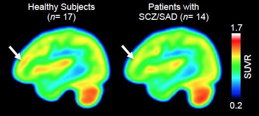 Levels of gene-expression-regulating enzyme altered in brains of people with schizophrenia