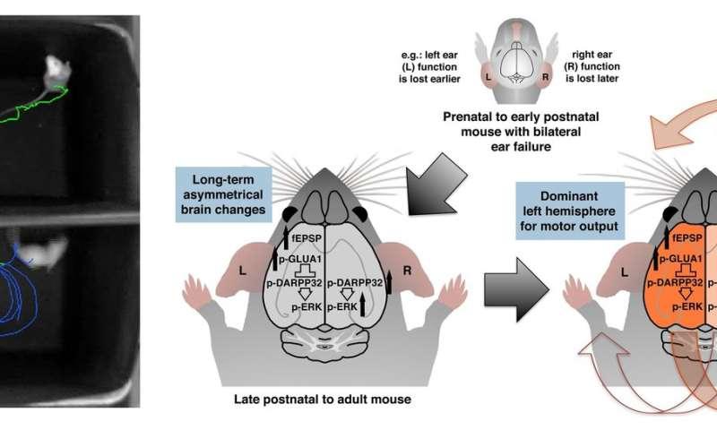 Lopsided ear function can lead to lopsided brain development