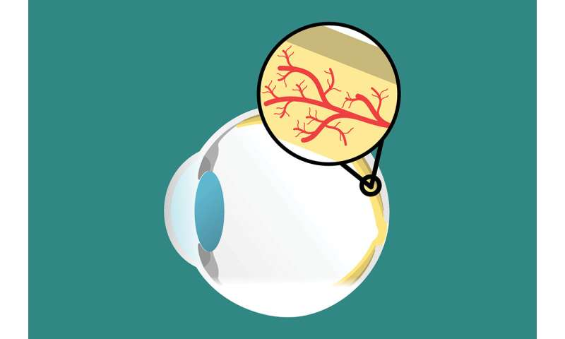 Macular degeneration linked to aging immune cells