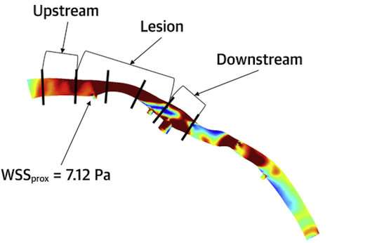Mapping shear stress can help predict heart attacks