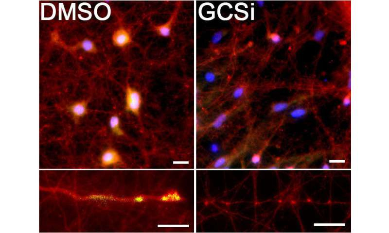 Mechanism behind common Parkinson's mutation discovered