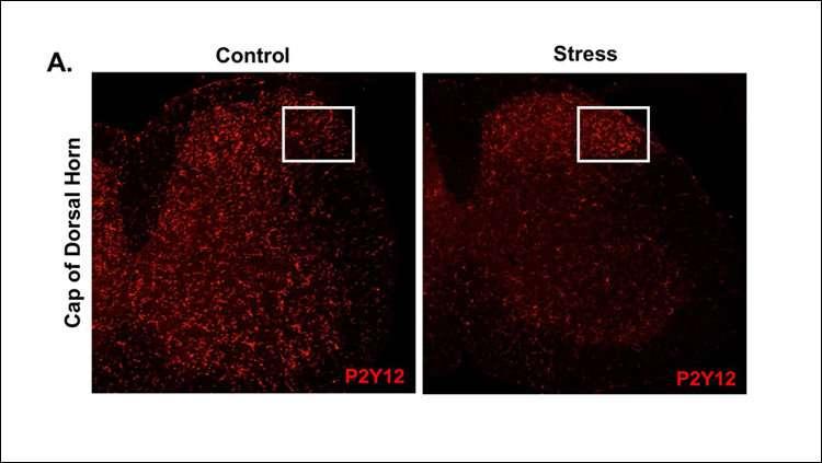 Microglia transmit pain to the brain during stress