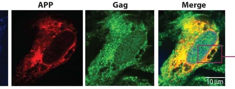 Molecular mechanism behind HIV-associated dementia revealed