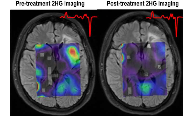 MR spectroscopy imaging reveals effects of targeted treatment of mutant IDH1 gliomas