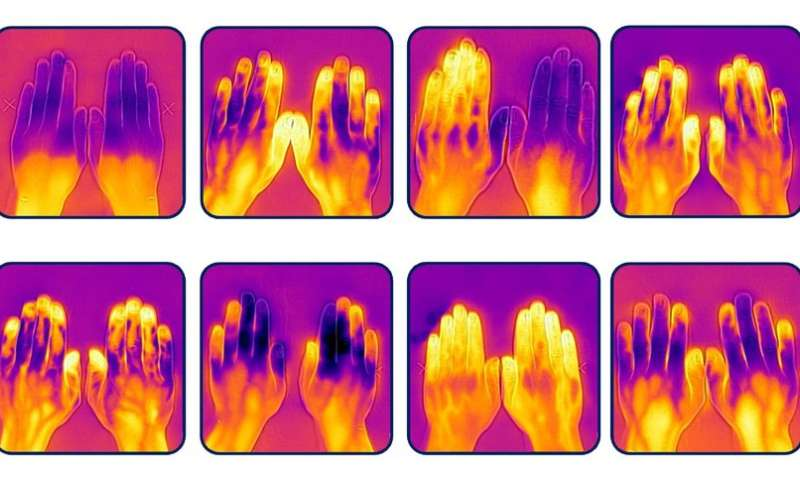 Muscle more important than fat in regulating heat loss from the hands
