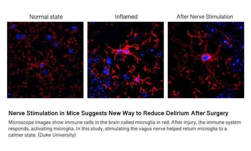Nerve stimulation in mice suggests new way to reduce delirium after surgery