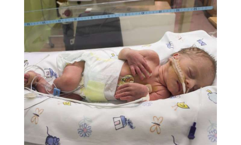 Neurodevelopment not impacted by glucocorticoids in preemies