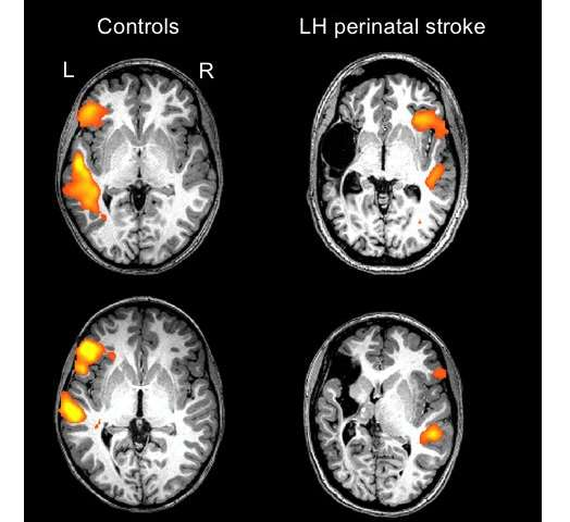 Newborn babies who suffered stroke regain language function in opposite side of brain