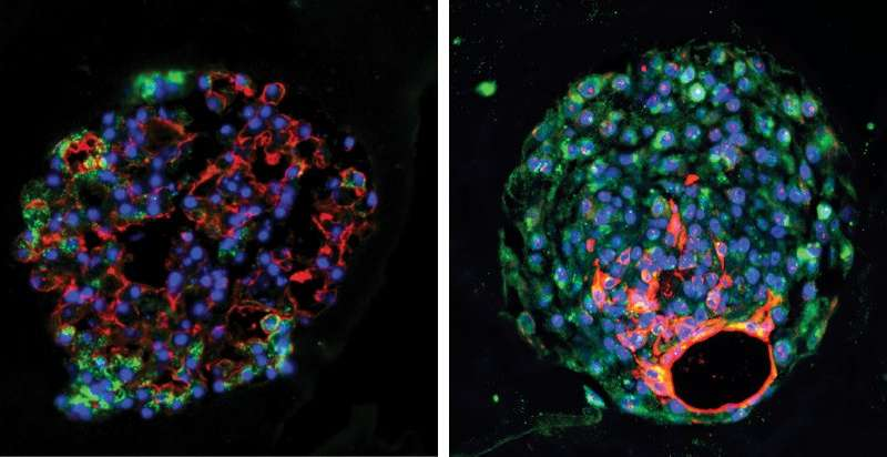 New-found stem cell helps regenerate lung tissue after acute injury, finds Penn study