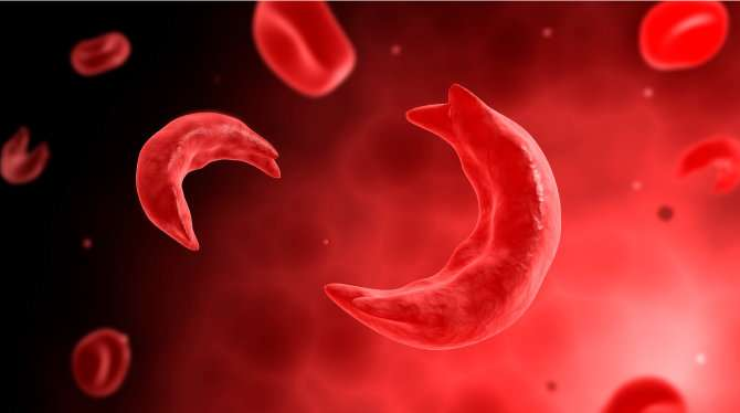 New layers in research, treatment of sickle cell trait and stroke