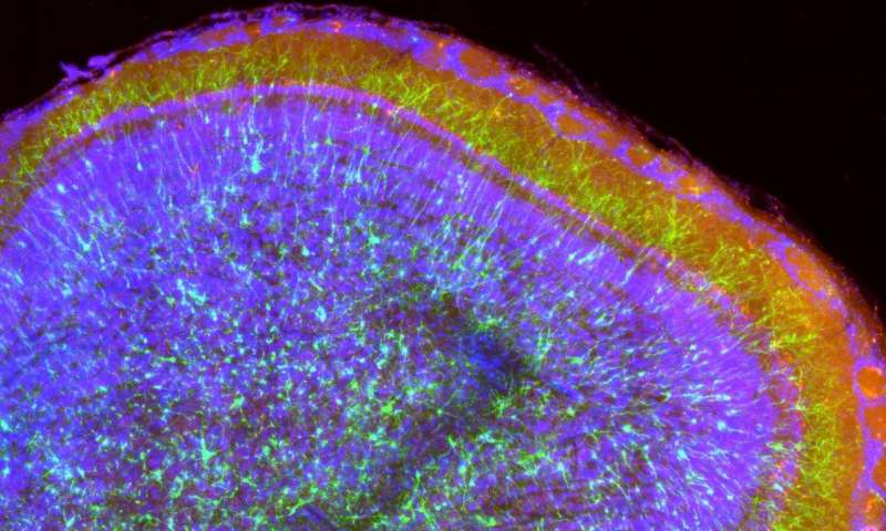 New neurons in the adult brain are involved in sensory learning