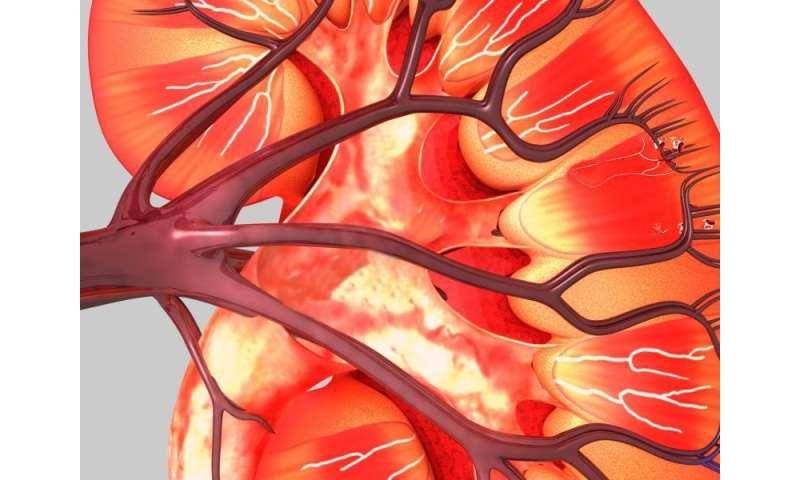 Nivolumab plus ipilimumab tops sunitinib for advanced renal CA