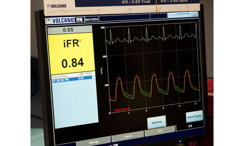 Non-invasive technology is a money-saver for heart patients needing PCI