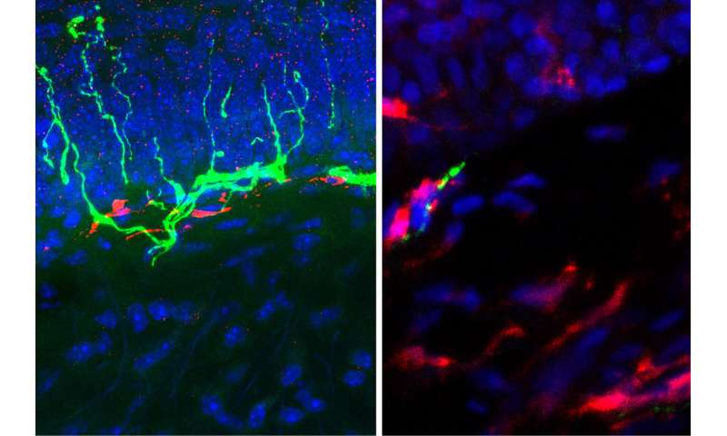 Non-opioid drug relieves pain in mice, targets immune cells