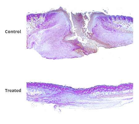 Novel combination therapy promotes wound healing