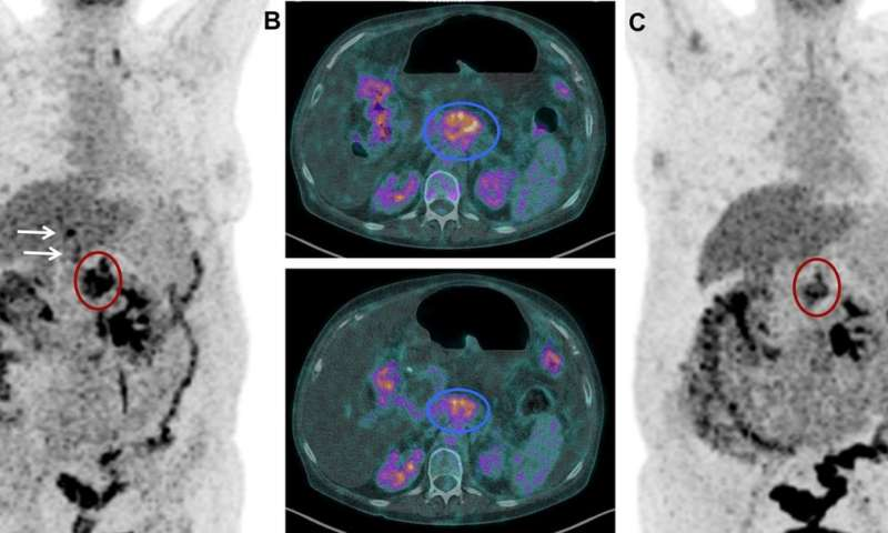 Novel theranostic approach for treating pancreatic cancer patients shows promise