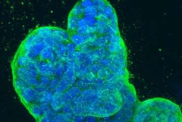 'Orphan' RNAs make cancer deadlier, but potentially easier to diagnose