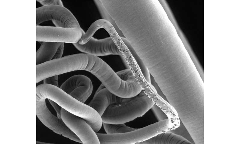 Parasitic worms need their intestinal microflora too