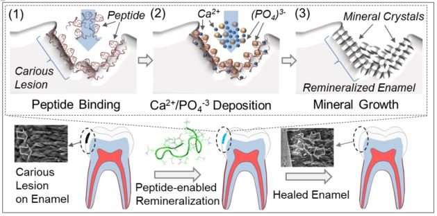 Peptide-based biogenic dental product may cure cavities