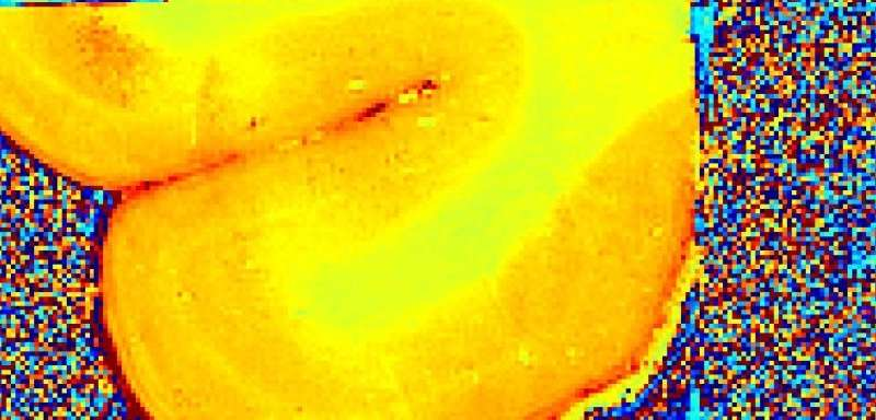 Physicists link specific iron forms to Alzheimer's