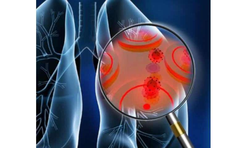 Portable cancer test uses smartphone, new gold biosensor