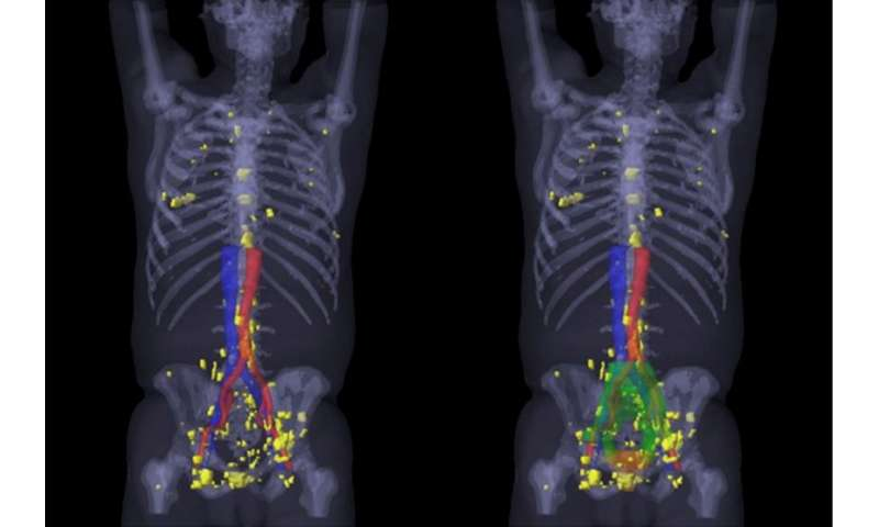 PSMA PET/CT visualizes prostate cancer recurrence early, impacts radiation therapy